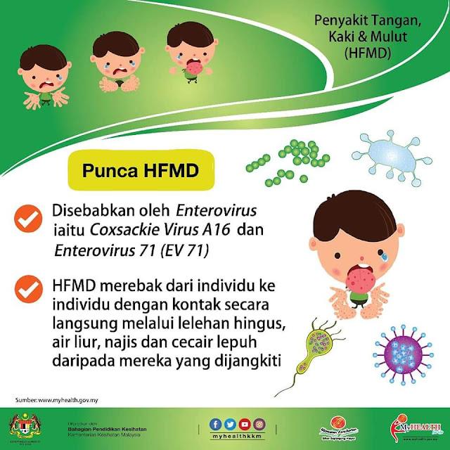 Infografik punca penyakit hfmd