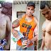 Padah Obses Bina Badan, Tangan Lelaki Ini Hampir Putus Dua