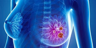 Breast Cancer Detection And Treatment