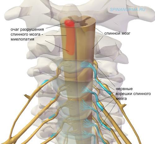 остеохондроз шеи слева