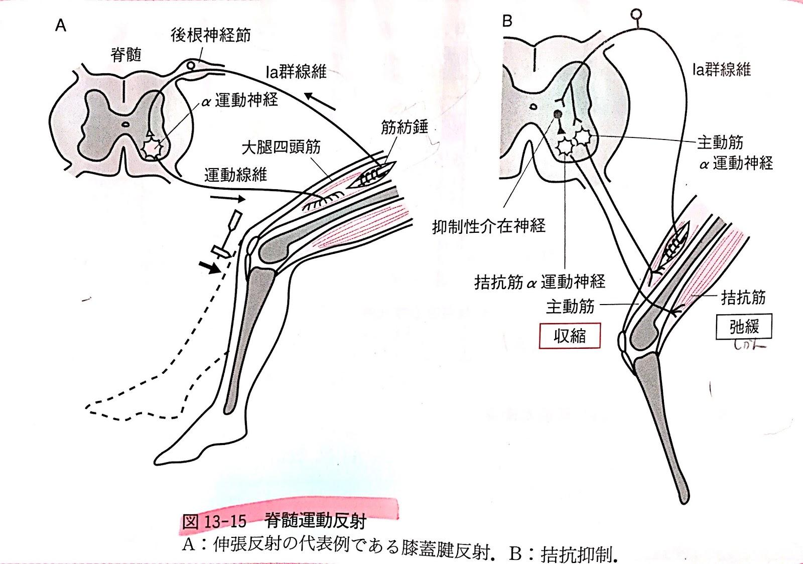 亢進 反射 膝蓋 腱