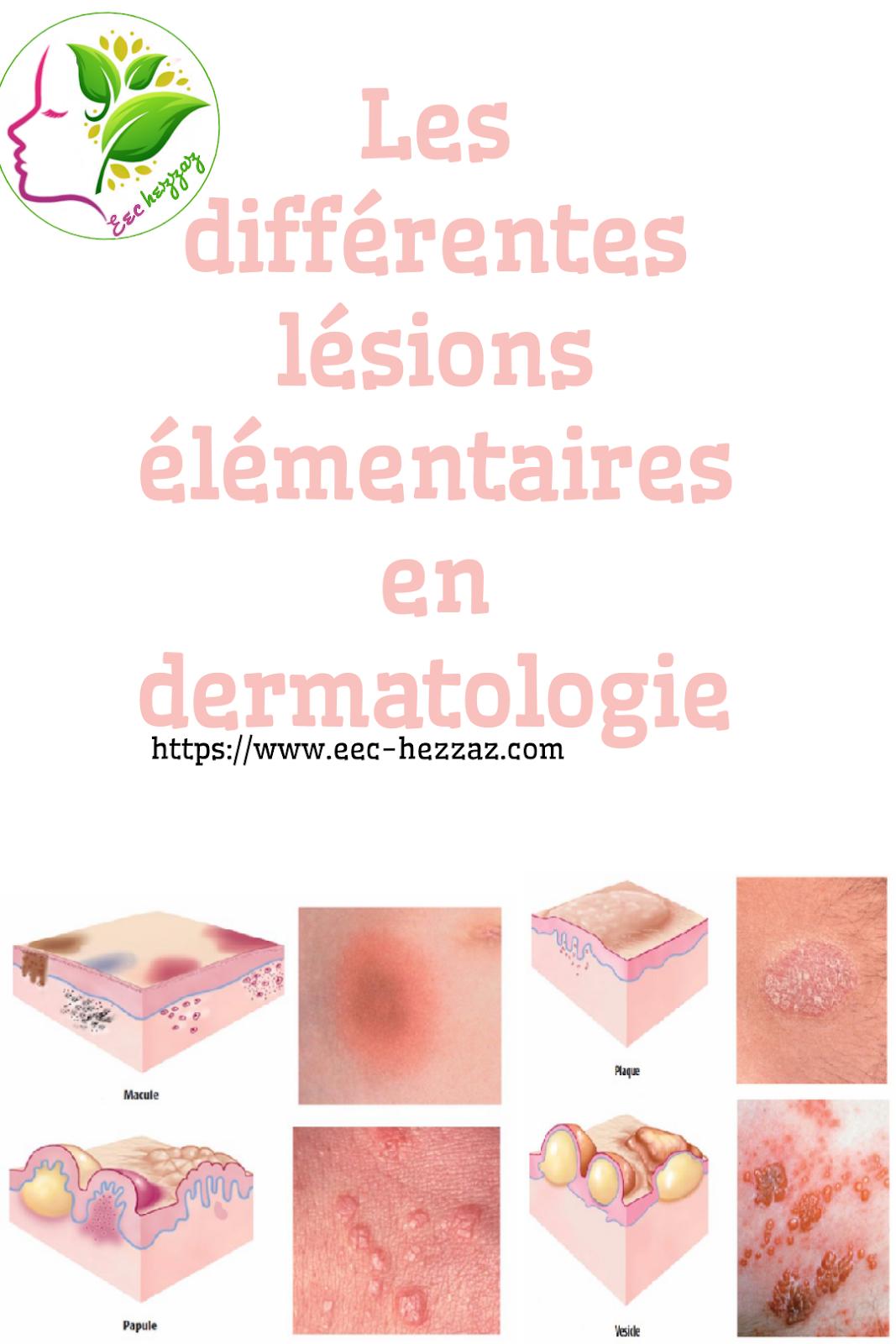 Les différentes lésions élémentaires en dermatologie