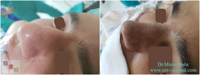 Male Nose Job,Rhinoplasty in Men Istanbul, Thick Skinned Male Rhinoplasty