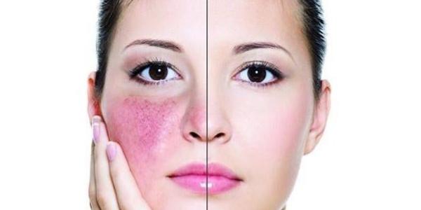 Ilustrasi alergi pada wajah