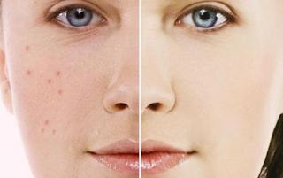 http://mustahabbah.blogspot.com/2017/06/tips-menjaga-diri-dari-penyakit-kulit.html
