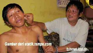 Manusia Kayu atau Scleroderma
