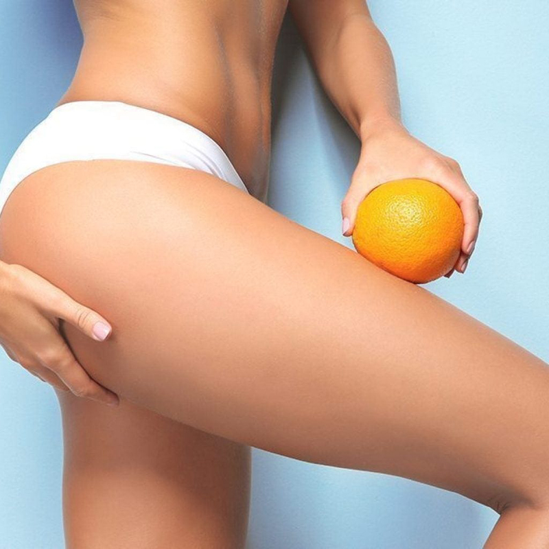 10 Powerhouse Foods That Fight Cellulite