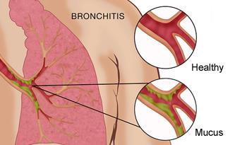 Cara mengobati sakit bronkitis kronis