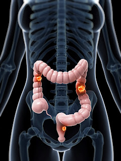 Tipos de cancer de colon y colonoscopia para detectarlo en guadalajara mexico