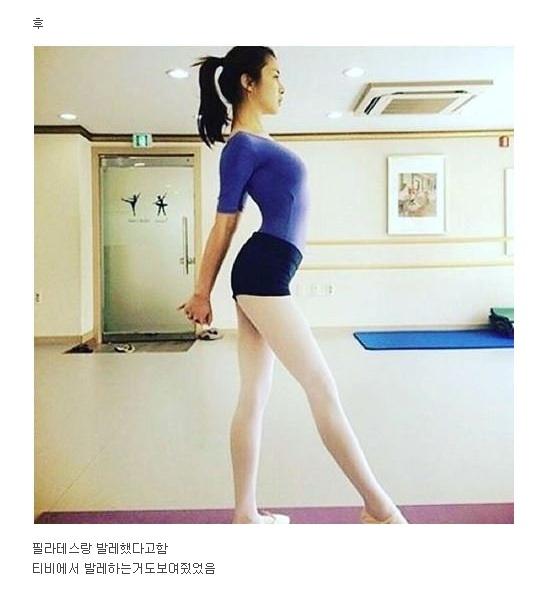 강소라 거북목 교정 전 후