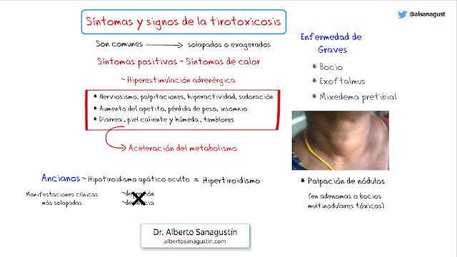 síntomas y signos de hipertiroidismo