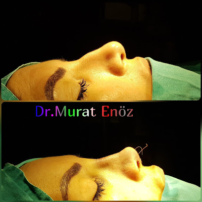 Ethnic Rhinoplasty in Istanbul, Thick Skin Nose Job,
