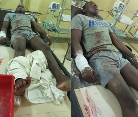 See photos of what some SARS operatives did to a young man in Abuja