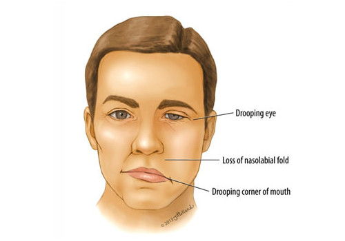 Drooping Face-Signs of a Stroke in Men and Women