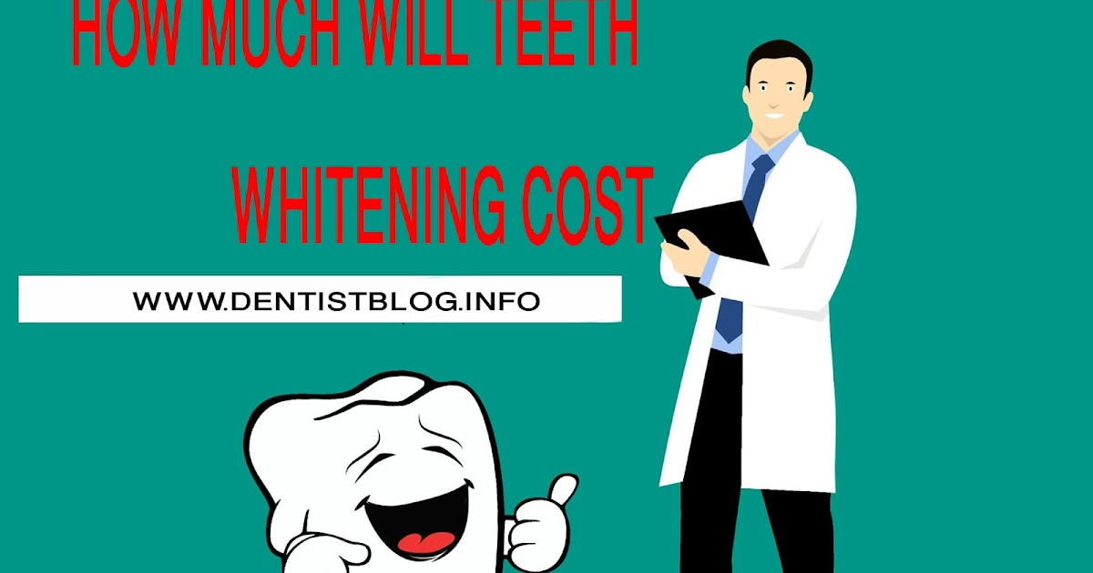 Teeth Whitening How Much Does The Treatment Cost