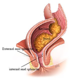 fecal incontinence treatment