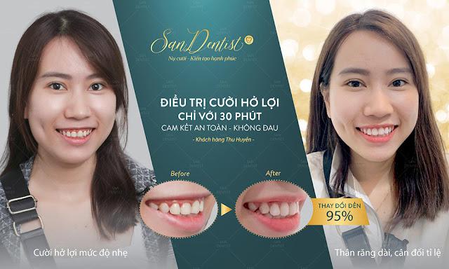 Phẫu thuật chữa cười hở lợi cho nụ cười xinh