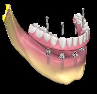 Dental Prosthetics Market