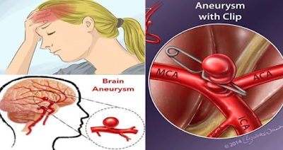 Treatment for Brain Aneurysm and How to Prevent it Before It's Too Late!