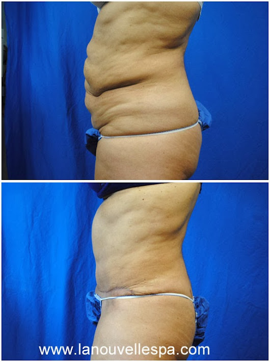 Finding Answers about the Tummy Tuck Procedure in Ventura County