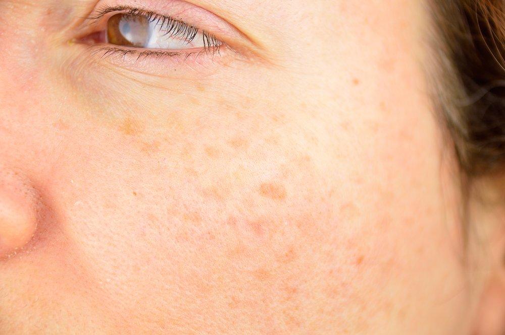 8 Best Effective Healthy Glowy Skin Care Tips