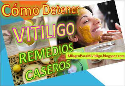 como-detener-el-vitiligo-remedios-caseros-evitar-avance-crecimiento