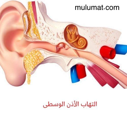 أعراض التهاب الأذن الوسطى وكيفية علاجها للصغار والكبار