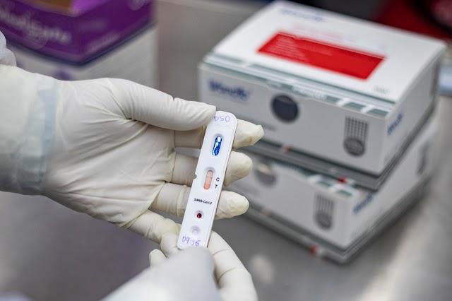 Governo do Ceará distribuirá mais 280 mil testes rápidos para diagnóstico de Covid-19 na Capital e Interior