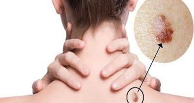 Estos son los síntomas ocultos de las Enfermedades de Transmisión Sexual que usted tiene que saber!