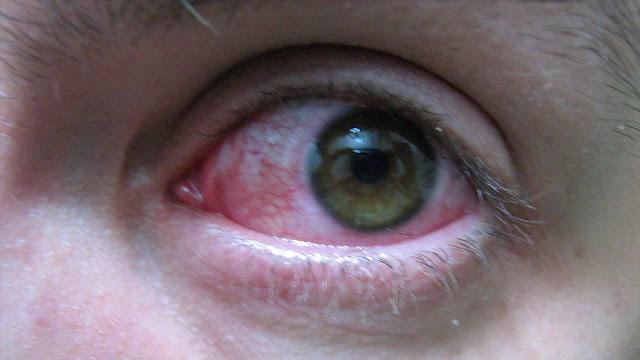 Cómo afecta la salud de nuestros ojos el estrés