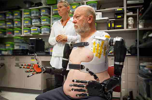 This man is the world's first cyborg