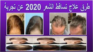 طرق علاج تساقط الشعر 2020 عن تجربة