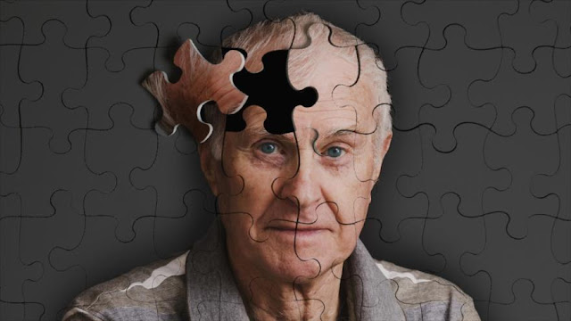 Dieta Occidental aumenta el riesgo de contraer el Alzheimer