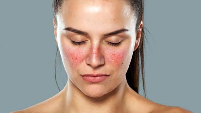 8 Gejala Penyakit Lupus