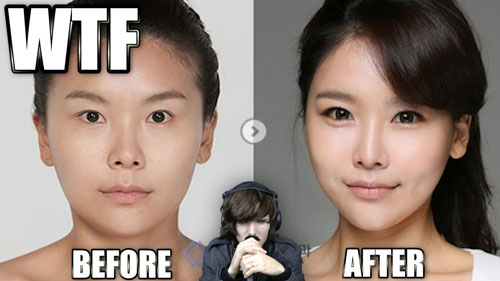 Before and After Laser Eye Surgery
