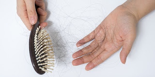 Ayurvedic Treatment for Hair Loss or Hair Fall