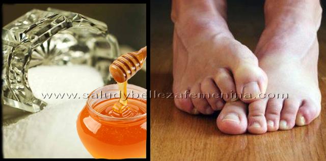 Elimina los hongos de los pies  para siempre con este remedio casero, poderoso remedio casero sencillo y practico para eliminar los hongos en los pies.