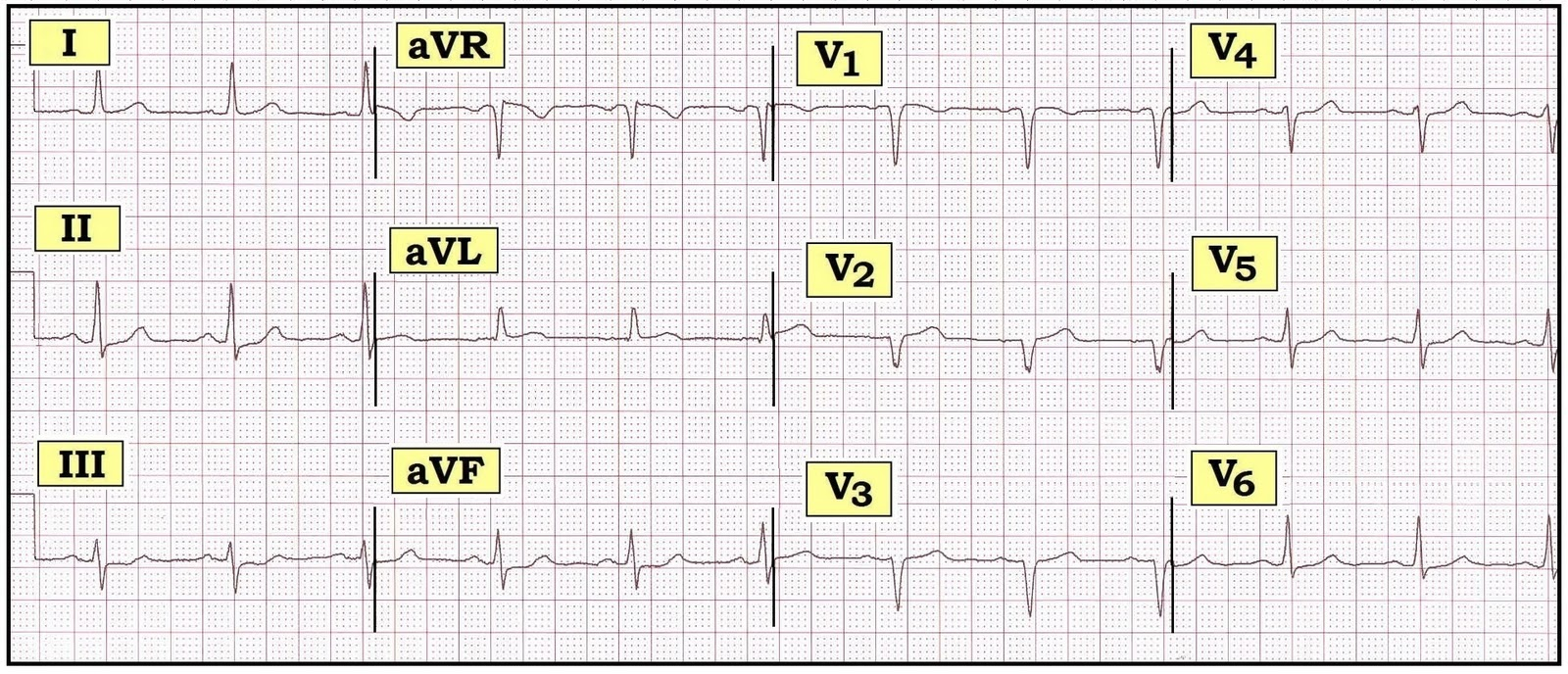"figure 1 – 12-lead ecg from a 72-year-old woman with new-onset chest  discomfort  do you agree that there are ""no acute changes""?"