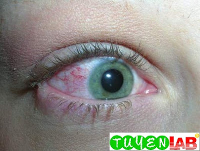 Bacterial conjunctivitis with visible discharge on the lateral eyelids