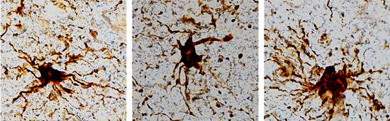 Genes Zumbis no Cérebro Humano Aumentam Atividade Após a Morte - Img 1