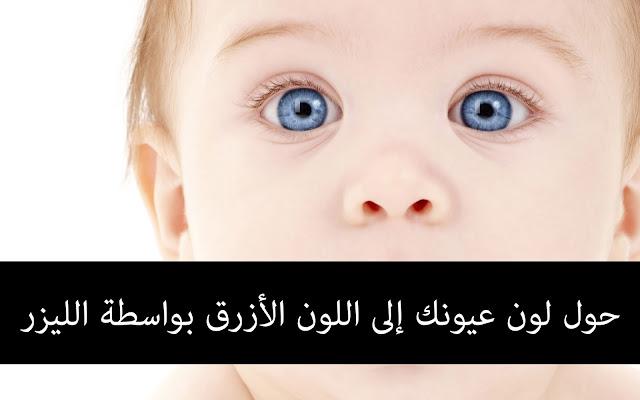 حول لون عيونك إلى اللون الأزرق بواسطة الليزر