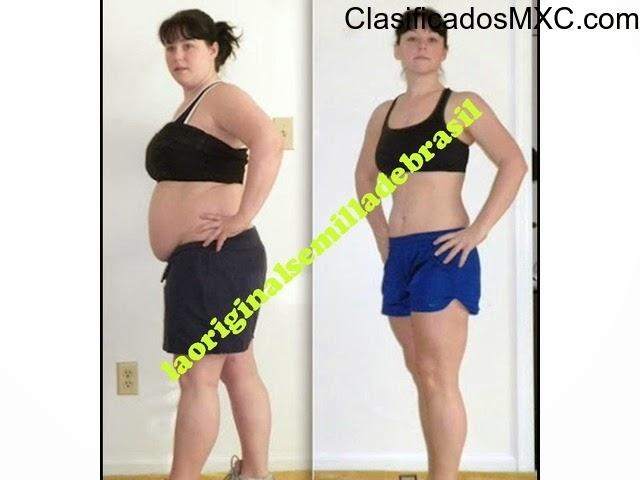 nuez dela india para bajar de peso antes y despues abdominoplastia