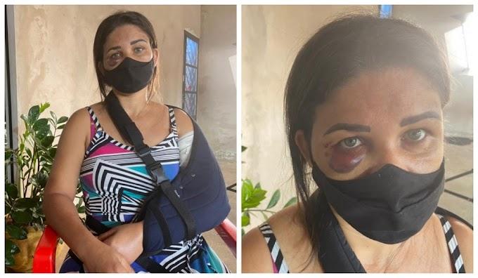 Funcionária de padaria tem braço quebrado por cliente após pedir para homem usar máscara contra a Covid