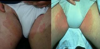 Toko Obat Gatal Alergi Di Selangkangan Yang Ampuh