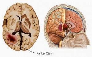 Obat Herbal Kanker Otak Paling Ampuh Tanpa Operasi