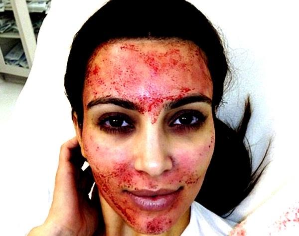 4 Bizarre Beauty Treatments Many Are Swearing By