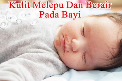 http://iroskesehatanherbal.blogspot.com/2018/11/cara-alami-megobati-kulit-melepuh-dan.html