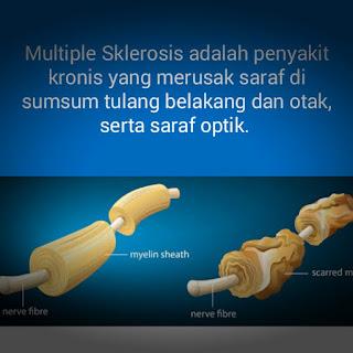 Faktor-penyebab-multiple-sklerosis