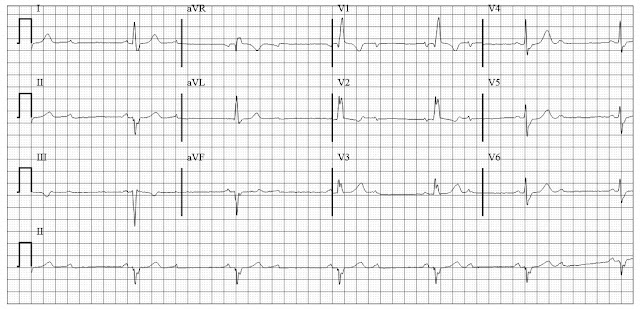 ECG of Atrioventricular Block 2:1