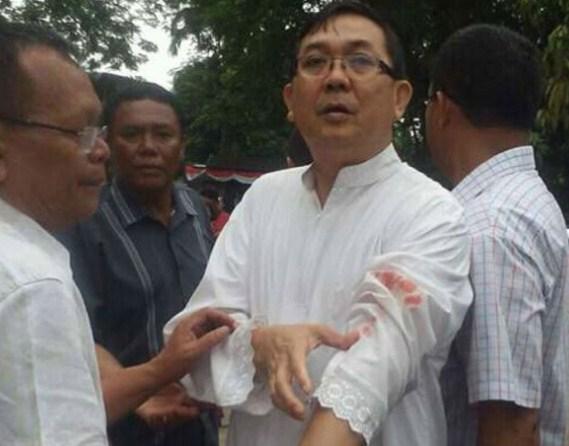 Pastor Albert Pandiangan terkena goresa pisau pelaku